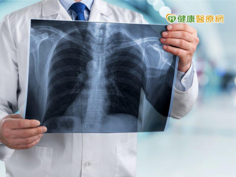 41歲男不菸竟肺癌 免疫治療病況穩
