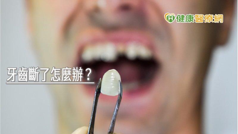 牙齒斷了怎麼辦? 專業醫師解析不同情況治療方式