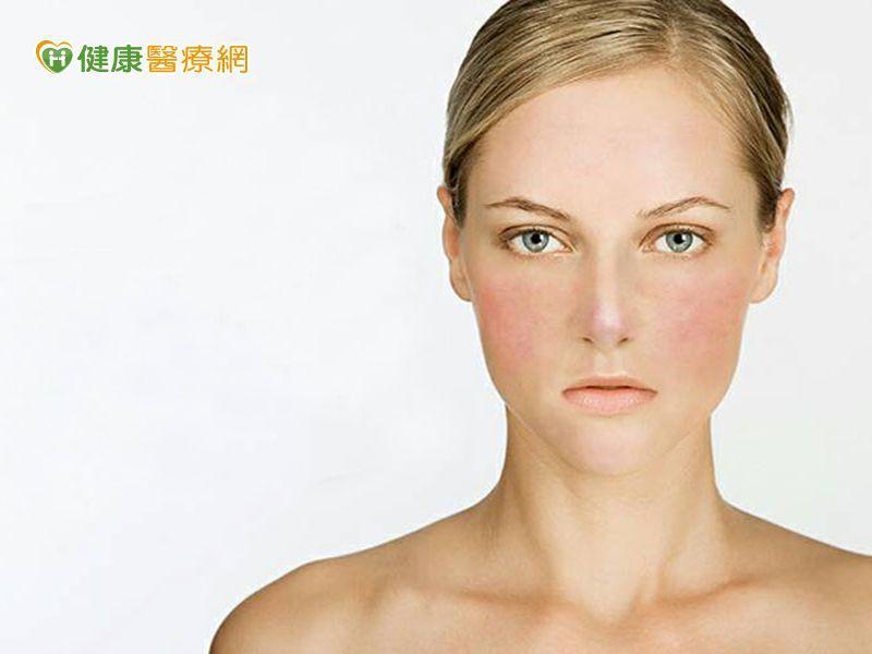 酒糟皮膚炎新選擇! 給你乾淨健康好膚質