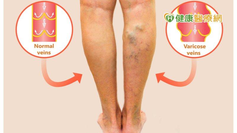 腳暴青筋、嚴重靜脈曲張注意! 「新式微創手術治療」降栓塞風險