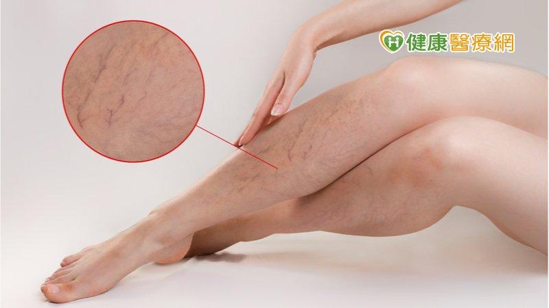 靜脈曲張穿彈性襪、按摩都無效? 「新式微創手術」防肺栓塞