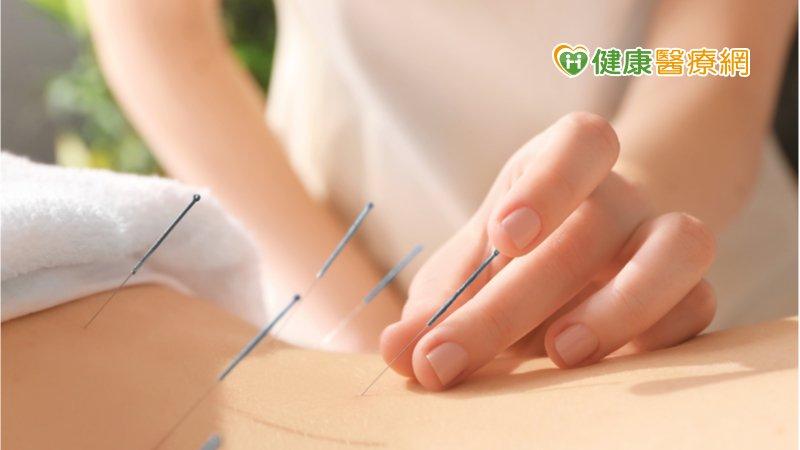 老是偏頭痛、肩頸腰背痠痛? 中醫「小扁針」舒緩佳