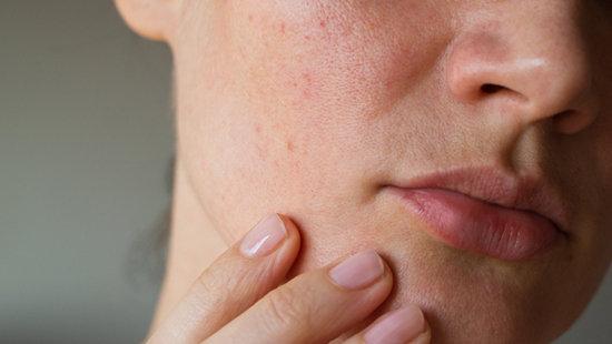敏感肌難呵護 如何選擇醫美療程?