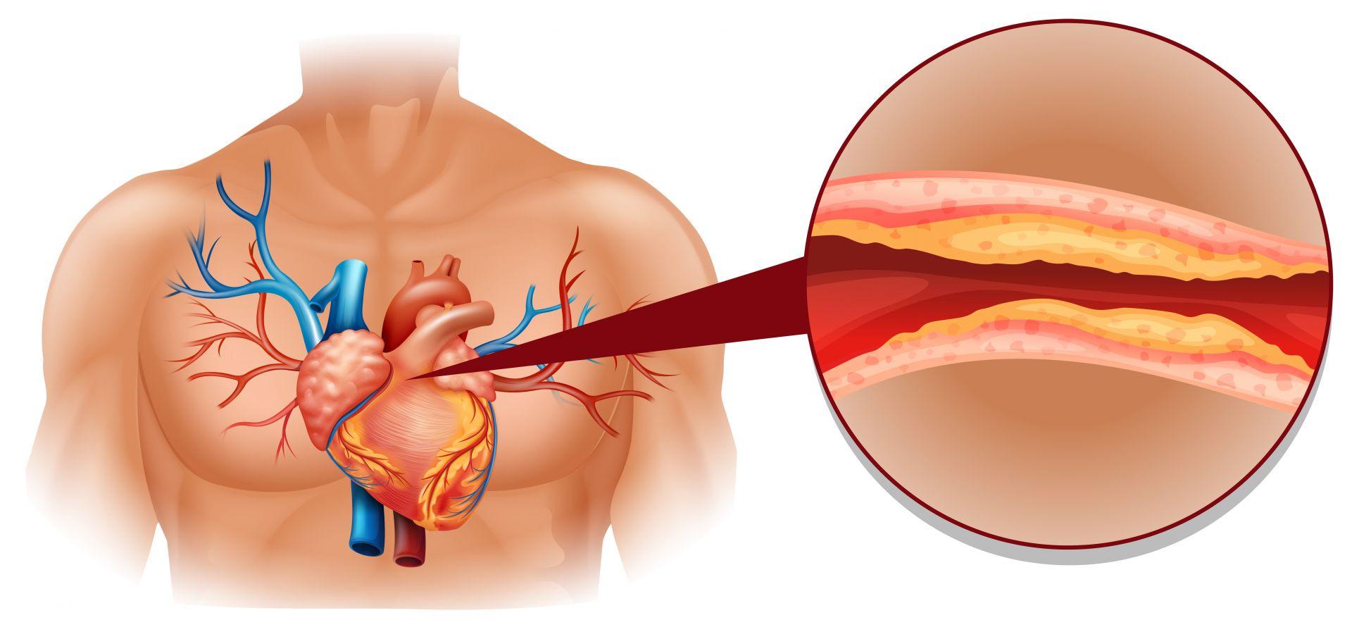 每5人就有1人血脂超標!高血脂症8大成因,壓力大、飲食不節等……都是致病因子