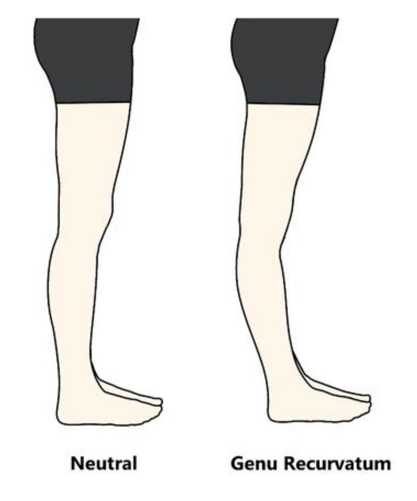 快速矯正膝蓋超伸!教練詳解膝蓋超伸原因,簡單4動作膝超伸改善、膝蓋脂肪也減去