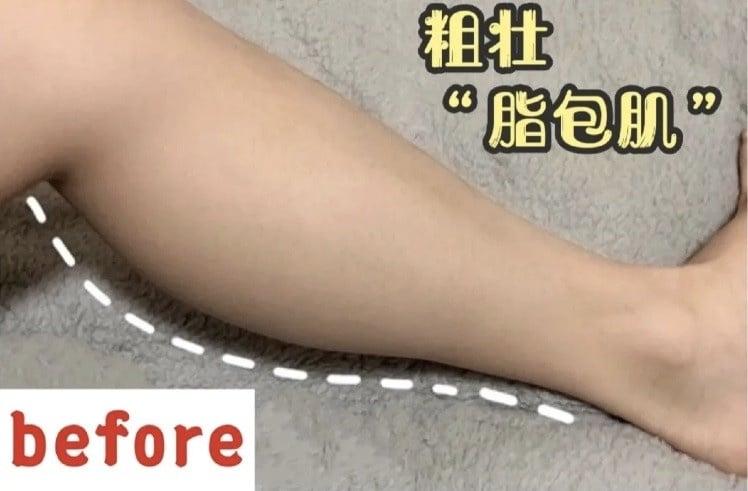 脂包肌小腿怎麼瘦?舞蹈老師公開5招「瘦脂包肌腿」運動,20天bye蘿蔔腿,還能縮臀圍