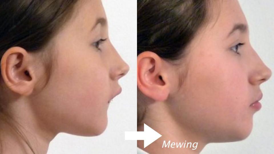 牙醫師:舌頭放對位置,輕鬆瘦雙下巴、五官變立體!國外瘋Mewing,小習慣就有整型效果